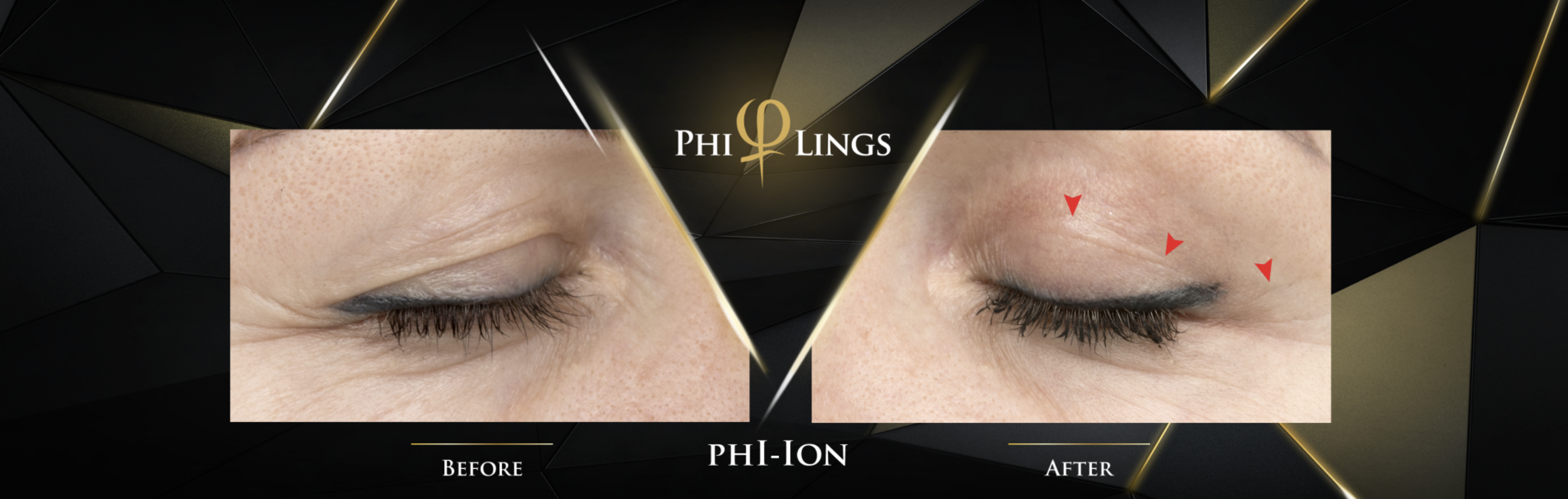 What is the Phi-ion Plasma Pen?